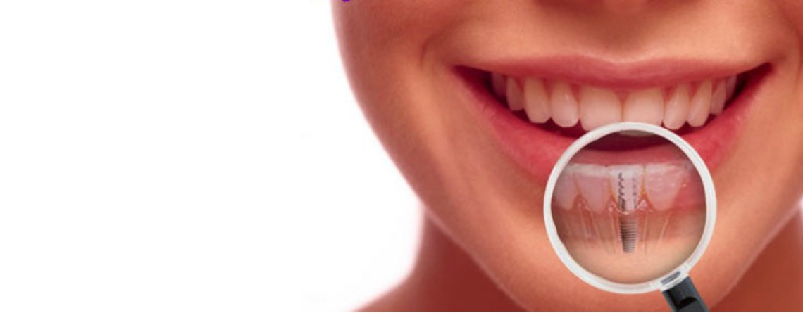 molar tooth implant - 640×267